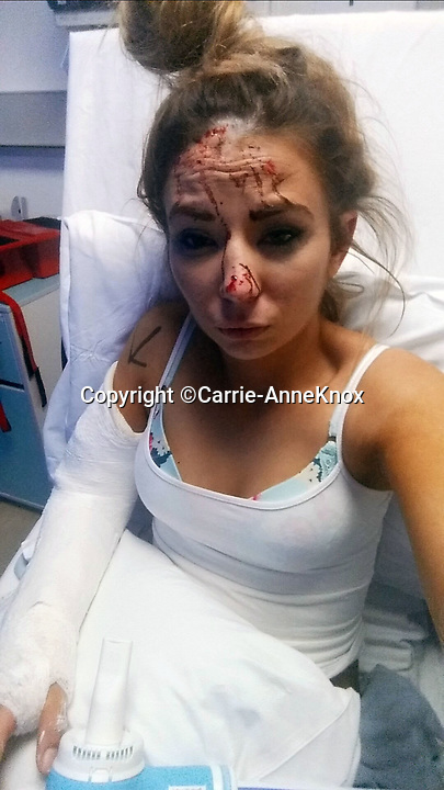 BNPS.co.uk (01202 558833)<br /> Pic:  Carrie-AnneKnox/BNPS<br /> <br /> Carrie-Anne finished her date in A&amp;E with a concussion and a badly broken arm.<br /> <br /> A woman today told of a first date from hell that ended with her being seriously injured, suffering post-traumatic stress, losing her job and her admirer going to jail.<br /> <br /> Carrie-Anne Knox, from Bournemouth, was left lying unconscious and suffering a badly broken arm by Bradley Van Outen who ran away after crashing his car on their date.<br /> <br /> She is still recovering from her injuries eight months later and has lost her job as a hairdresser as a result. Van Outen has been jailed for driving offences.