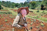 Irimina working outside in the fields. This is dangerous work as staying in the sun for many hours every day is damaging her skin. Discrimination against albinos is a serious problem throughout sub-Saharan Africa, but recently in Tanzania albinos have been killed and mutilated, victims of a growing criminal trade in albino body parts fuelled by superstition and greed. Limbs, skin, hair, genitals and blood are believed by witch doctors to bring good luck, and are sold to clients for large sums of money, carrying with them the promise of instant wealth.