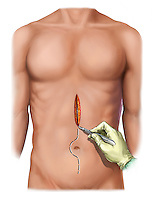 Biomedical illustration of an abdominal midline incision.