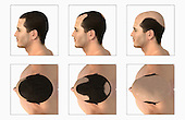 Illustration depicting the process of balding. A series of above and side views are shown. Royalty Free