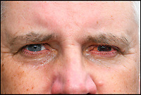 BNPS.co.uk (01202 558833)<br /> Pic: GrahamHunt/BNPS<br /> <br /> An angler is urging other fishermen to wear safety googles after he was left permanently blind in one eye following a freak fishing accident.<br /> <br /> Guy Manton, 55, has been told he will never see again in his left eye after his float flew back straight into his face, piercing his pupil and shattering his eyeball.<br /> <br /> When he pulled his hand back from his face he was confronted by a gruesome handful of blood and eye fragments.<br /> <br /> The engineer, from Gillingham, Dorset, suffered a detached retina in the gruesome accident and was rushed to hospital where specialists' attempts to stitch it back together were to no avail.<br /> <br /> Despite this, the father of five has vowed to carry on fishing - which has been his passion for almost 50 years - but he has already bought two pairs of safety googles to protect his one remaining working eye.