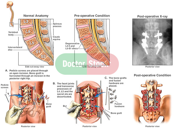 Back Surgery - L4-5, L5-S1 Disc Degeneration with Pedicle Screw Spinal Fusion.