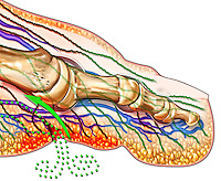 Biomedical illustration of a cut away lateral view of the big toe with a cut on the ventral surface. The blood vessels are shown and green dots representing bacteria are entering the vascular system from the open wound.