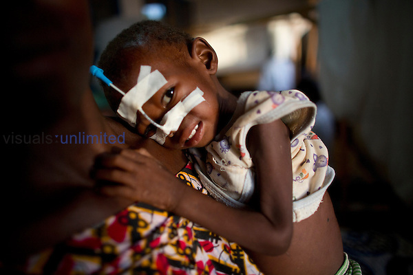Sick and malnourished child at MSF hospital in Central African Republic