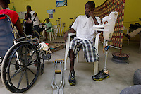 Port Au Prince, Haiti, April 13, 2010.Handicap International center; thousands of people have lost one or more limbs in the January 12 earthquake; the need for prosthetics and reeducation is enormous and will be long lasting as many victims are children who will need constant adjustments to their prothesis.
