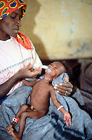 Angola. Cuando Cubango.Mavinga. Young girl, severely malnourished child, in a hospital run by MSF (M?decins Sans Frontires) Switzerland.  A MSF nurse tries to feed the skinny girl using a syringe to pour enriched milk into her mouth. © 2002 Didier Ruef
