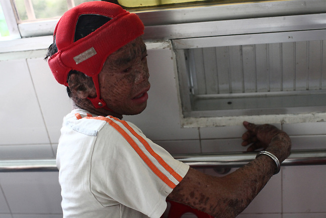 A boy with eczema so severe that he looks like a burn victim is pictured in the Agent Orange children's ward of Tu Du Hospital in Ho Chi Minh City, Vietnam.  About 500 of the 60,000 children delivered each year at the maternity hospital, Vietnam's largest, are born with deformities, some because of Agent Orange, according to doctors. This boy is in so much pain because of his condition that he frequently bangs his head against the wall and must wear a padded helmet so that he does not hurt himself.  May 1, 2013.