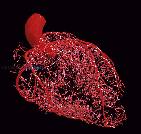 Resin cast of coronary arteries of the human heart.