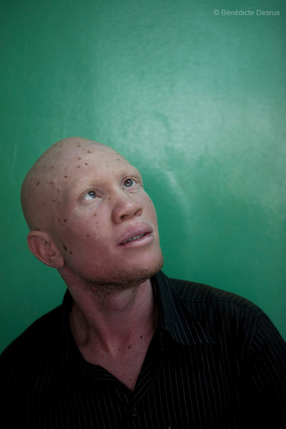 21 February 2010  Kampala, Uganda  Portrait of Jude Ssebyanzi, director of the Uganda Albinos Association, in Kampala, Uganda. Photo credit: Benedicte Desrus