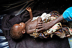 A malnourished child -- displaced by violence throughout the Darfur region of Sudan -- is cared for by his mother in a hospital in Garsila. Disease and malnutrition have taken a heavy toll among the Darfuris, displaced by fighting between government forces, Arab militias, and rebel soldiers.
