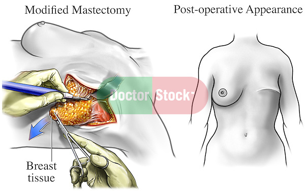 mastectomy surgical removal of one or Mastectomy is a way of treating breast cancer by removing the entire breast through surgery a modified radical mastectomy combines a simple mastectomy with the removal of the lymph nodes under the arm (called an axillary lymph node dissection) illustration showing the incision, breast tissue and.