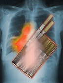 X-ray of the chest showing lung cancer superimposed with an x-ray of a pack of cigarettes.
