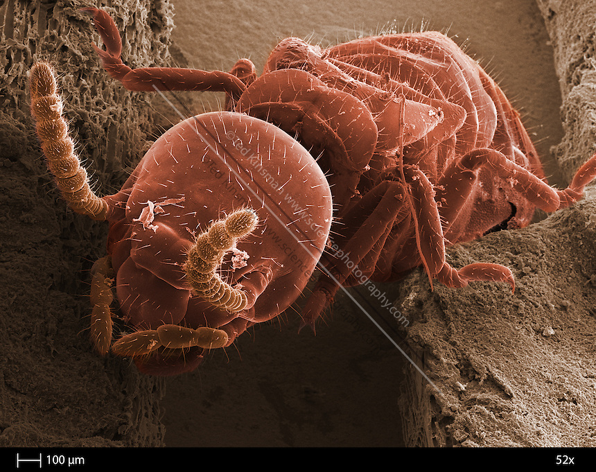 Scanning electron microscope image of the eastern subterranean termite (Reticulitermes flavipes) is the most widely distributed Reticulitermes termite and is found in the entire eastern region of North America as far north as Ontario, Canada, and south to Florida.  The calibration bar is 100 um and the magnification was 52 x...
