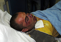 Organised racist attack on Egyptian migrant workers. Athens 12-6-12 A house occupied by Egyptian fishermen in the Athens neighbourhood of Perama in the suburb of Pireaus was attacked at 3am on the morning of  June 12th. Attackers on motorbikes vandalised vehicles outside the building and tried to gain entry by breaking through the windows and front door. The occupants held them off but 24 year old  Abouz Mubarek  who was asleep on the roof was caught and severly beaten.