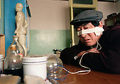 Electrical facial therapy to cure facial paralysis. ..Photo taken March 2000