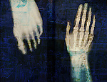 X-ray of hand and foot with renaissance architecture overlay.