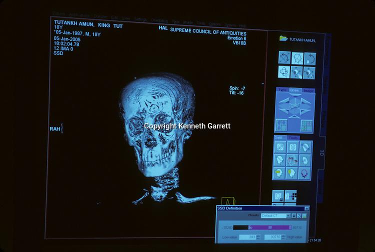 CT scan of Tutankhamun,King Tutankhamun, Egypt, New Kingdom, Tutankhamun, Valley of the Kings, Tut, CT Scan,Tutankhamon,Tutankhamen