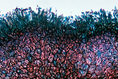 Black Knot of Plum caused by the fungus Dibotryon morbosum. LM