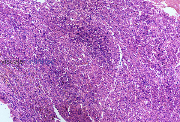 Sarcoma of human eye tissue. LM X80