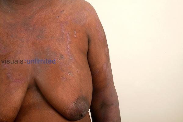 Upper torso of a 50-year-old female suffering from Pemphigus Vulgaris.