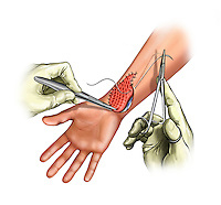 Biomedical illustration of suturing meshed skin graft over a wrist wound.