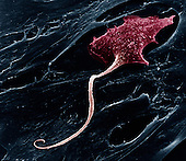 A neuron with a long axon.    This nerve cell transmits impulses through the nervous system.  The axon is the long slender projection of a neuron, which conducts electrical impulses away from the neuron's cell body. SEM X400