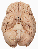 Base of the human brain showing the cerebrum, cerebellum, brainstem, olfactory tract, optic chiasma, and optic nerves.