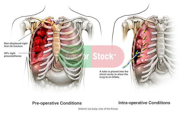 Rib Fracture and Pneumothorax Injury with Placement of a Chest Tube to ...
