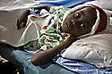 PORT-AU-PRINCE, Haiti. Girl receiving medical care at a hospital set up by the University of Miami in partnership with the UNGlobal Institute/Project Medishare on the grounds of the Port-au-Prince airport after an earthquake rocked Haiti.  The 82 Airborne in conjunction of the UN security forces provide security for a variety of NGOs working in cooperation with the World Food Program in what will be the largest coordinated humanitarian campaign to date in Haiti since the earthquake. 10,000 Haitians a day for 14 days at 16 locations will be given rice in a food distribution program. Families were given tickets that tell then what day and site to report to. Residents from the Site Soiel, the poorest neighborhood in Porto-au- Prince went to a distribution point next to a newly formed tent city, 1.5 miles away to receive their rations.  That site was run by Samaritan's Purse International . At 4:30 AM, The 82 Airborne ran constantine wire along a stone wall to create a barrier  between the forming line and the crowd to keep the line orderly. By 5AM there were up to 4000 people waiting for food.  Toward the end of the line there was pushing and shoving and people jumping the line. All tickets were accepted, though they were not all matching what the NGO was suppose to take. Only people without tickets or with multiple tickets were denied rice.  Thousands were still waiting for food. A crowd with out tickets created a dangerous situation however no major incidents took place during the distribution.The food ran out before the line ended at 11 am.