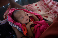 Kenya - Dadaab - 3 weeks old baby being cured for severe malnutrition at GTZ hospital in ifo camp.