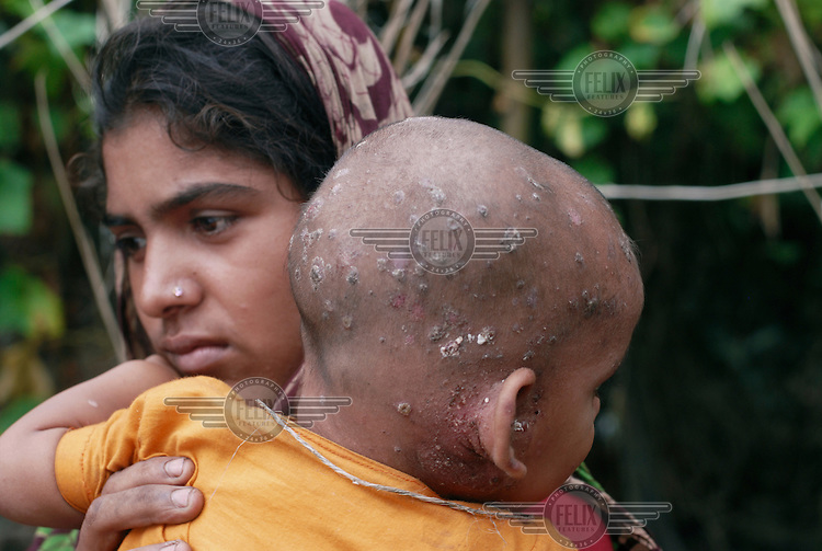 20 year old Chamily with her 16 month old baby Shuboh, who has a bad skin infection caught from contaminated water after flooding in the region submerged their village of Bashalia, on the banks of the River Jumna, for 15 days.