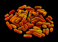 Escherichia coli, commonly known as E. Coli. This bacteria, when found in above average numbers, can cause food poisoning