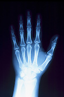 X-RAYS<br />