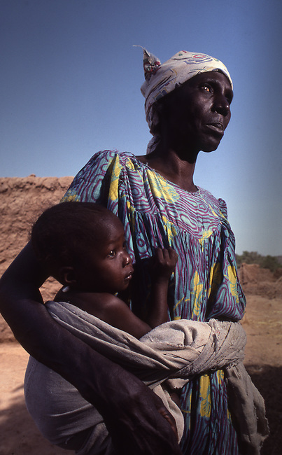 """Mali, Africa, woman blind from """"river blindness"""" caused by mosquitos. Onchocerciasis."""