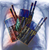 X-ray of the chest showing lung cancer superimposed with x-ray of a pack of cigarettes.