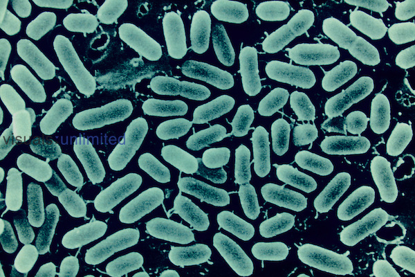 Listeria monocytogenes Bacteria cause food poisoning and can grow at refrigerator temperatures. SEM.