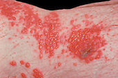 Herpes Zoster or Shingles viral infection on human skin