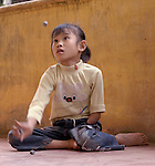 "Luong Hoai Thuong was born without her left hand, a birth defect caused by Agent Orange remaining from the U.S. war against Vietnam. Here she plays ""jacks"" at her home in Dong Son, Vietnam. During the Vietnam War, US forces sprayed Agent Orange over forests and farmland in an attempt to deprive Viet Cong guerrillas of cover and food. The dioxin compound used in the defoliant is a long-acting toxin that can be passed down genetically, so it is still having an impact forty years on. The Vietnam Red Cross estimates that some 150,000 Vietnamese children are disabled owing to their parents' exposure to the dioxin. Symptoms range from diabetes and heart disease to physical and learning disabilities."