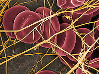 Red blood cells (erythrocytes) within a dense network of fibrin fibers in a blood clot.  SEM X7000