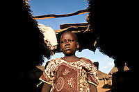 "Cavine, age 10, was the first child  started on ARV's by MSF in Madi Opei, Uganda. her mother sought treatment for her at a variety of  hospitals around Madi Opei before  she was treated by MSF. Without treatment she would surely have died her mother said. Now she has gained weight and  feels good. ""When i look at my picture there i see someone who is healthy and i dont see any sick patient there"" Cavine said when shown these pictures."