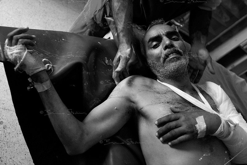 Hilla, Iraq, April 2, 2003.Hilla Hospital, Taher Preper, 50, was severely injured near his home by a US cluster bomb.
