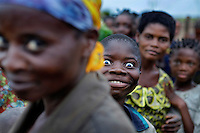 A child makes a face while standing among a crowd of villagers. Doctor Richard Hardi and his medical medical team have come to the remote village of Pania to perform eye surgery. <br /> <br /> From his base in Mbuji Mayi Hungarian ophthalmologist Friar Richard Hardi and his team travelled deep into the Congolese rainforest, by 4x4 and canoe, to treat people in isolated communities most of whom have never seen an ophthalmologist. At a small village called Pania they established a temporary field hospital and over the next three days made hundreds of consultations. Although both conditions are preventable, many of the patients they saw had Glaucoma or River Blindness (onchocerciasis) that had permanently damaged their eyesight. However, patients with cataracts, a clouding of the eye's lens, who were suitable for treatment were booked for an operation. For two days the team carried out the ten minute procedure on one patient after another. The surgery involves making a 2.2mm incision into the remove the damaged lens that is then replaced by an artificial one. Doctor Hardi is one of the few people willing to make such a journey but is inspired to do so by his faith and, as he says: 'Here I feel that I can really make a difference in people's lives'. /Felix Features
