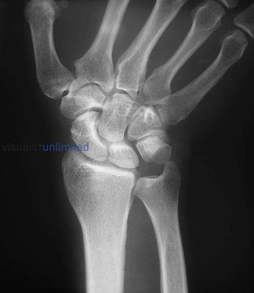 Radiograph of the left wrist.