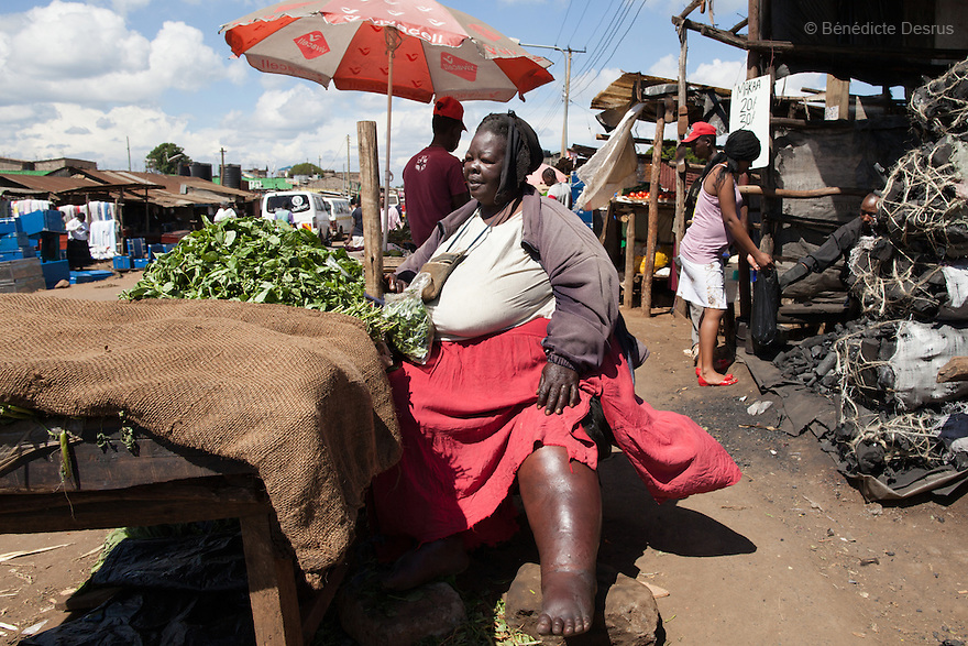 """Mama Safi"" sells vegetables in the street in front of her home in Kawangware slum in Nairobi, Kenya on December 8, 2012. Susan Kalai aka ""Mama Safi"" is a 53 year old Kenyan woman with severe morbid obesity living in Kawangware slum in Nairobi, Kenya. She lives on less than $1 USD a day, selling vegetables and fried potatoes in the street in front of her house. She has 7 children, the youngest one is 9 years old. She suffers from several obesity-related diseases. She can't walk, has a lot of pain in her legs and back and also has difficulties to breathe. She says ""I was born big. I was always like this. Both my parents and my sister are big too. So for me it's normal. Nothing is wrong with me"". She has no knowledge about obesity and she can't go to the doctor to get treated because she has no money to pay for it. She is afraid to die of a heart attack. Although large parts of Africa are plagued with malnutrition, the continent must now also deal with another problem: obesity. Obesity is fast becoming a serious problem in Kenya and even the poorest are now being affected. Obesity rates are climbing around the world and they are rising faster in developing countries than in developed ones. (Photo by Benedicte Desrus)"