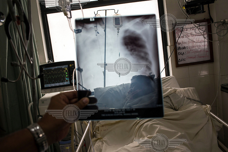 A doctor checks the X-ray of a patient's lungs in the intensive care unit of the Duncan Hospital.