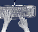 X-ray image of hands and keyboard (white on blue) by Jim Wehtje, specialist in x-ray art and design images.