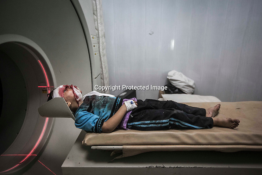 In this Thursday, Nov. 01, 2012 photo, a Syrian children lays down in the x-ray ward for a head tomography as he arrives to one hospital injured by a lost bullet in between his eyes in the nearby Tarik Al-Bab neighborhood in Aleppo, the Syrian's largest city. (AP Photo/Narciso Contreras).