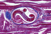 Parasitic Nematodes encysted in muscle (Trichinella spiralis). Trichinosis is best known as the parasitic disease that infects humans who have eaten raw or undercooked pork. LM X75
