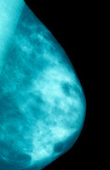 X-ray of a clear mammogram of a human breast. Mammography is useful in conjunction with physical examination for the early detection of breast cancer.