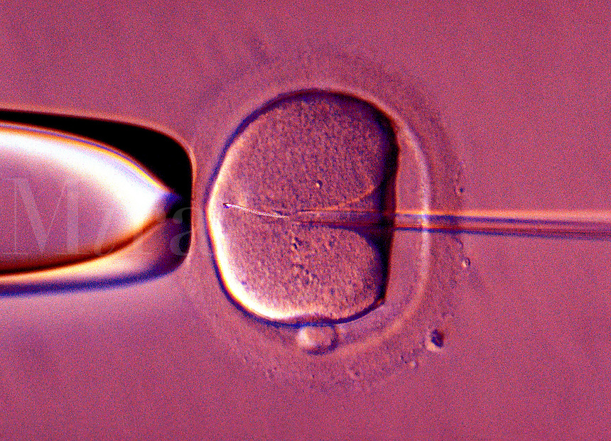 female egg undergoing IVF treatment